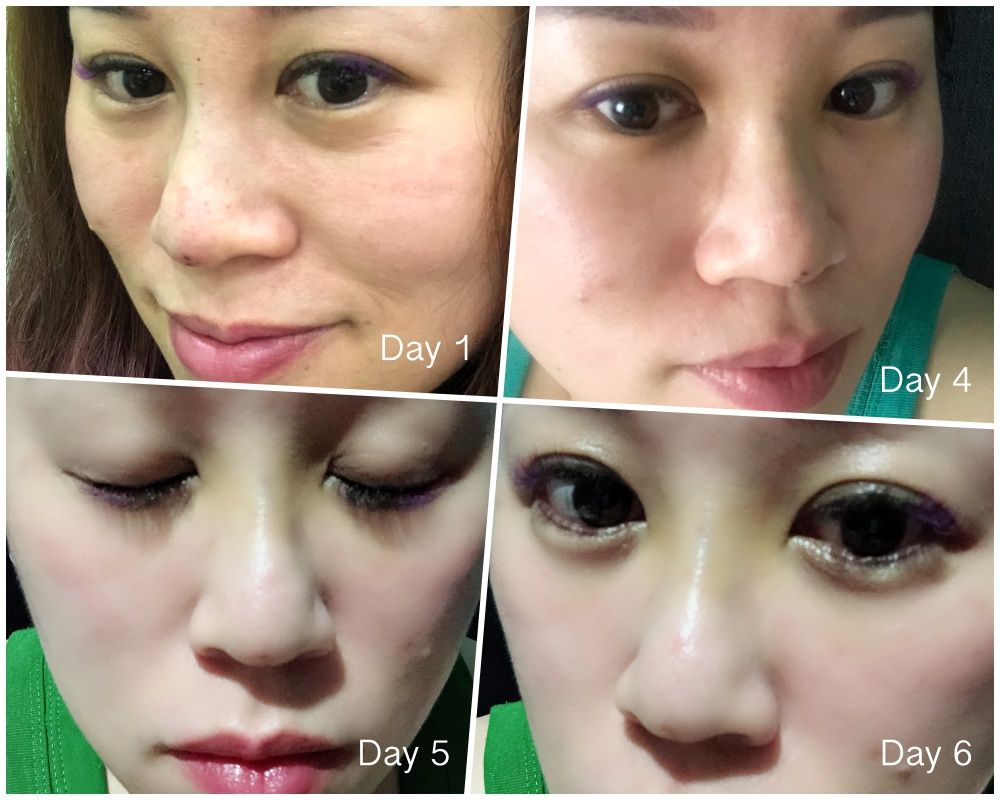 laclinic com sg, hiko nose thread lift singapore